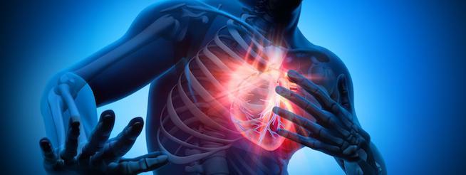 L'arrêt cardiaque (image Cleanitud')